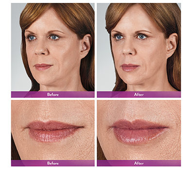 Juvederm Volbella Before and After Dallas, TX