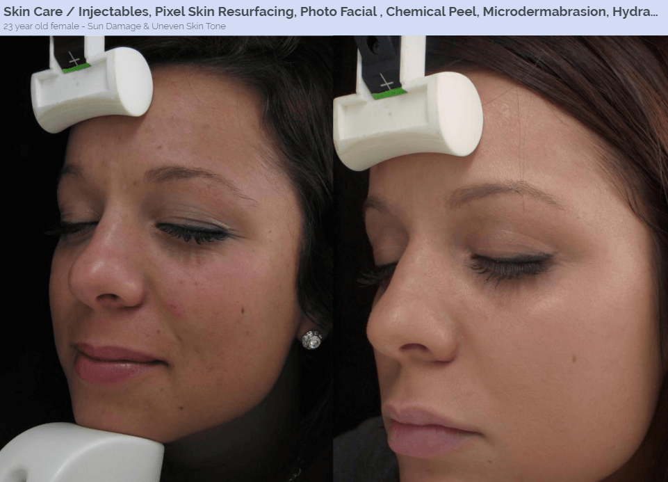 Chemical Peels Treatment North Dallas