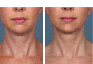 Kybella Treatment Dallas, TX