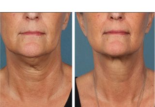 Kybella Treatment North Dallas, TX