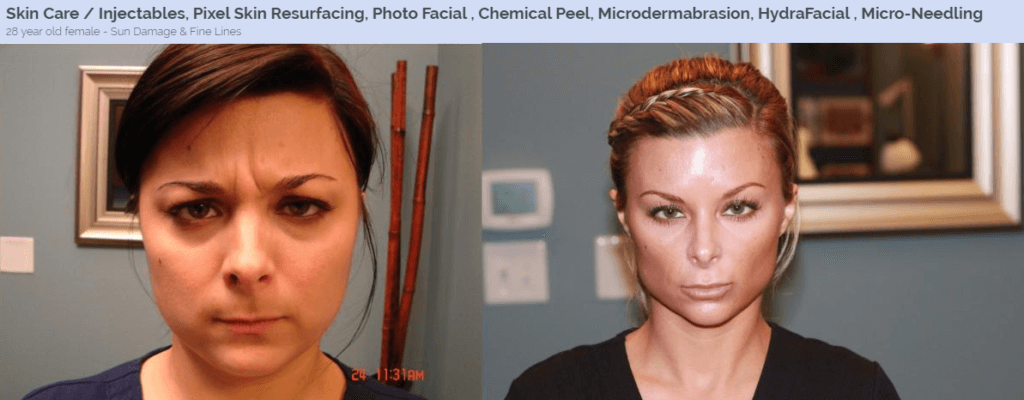 MicroNeedling North Dallas, TX