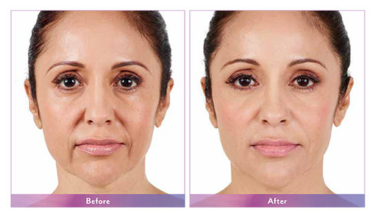 juvederm xc north dallas, tx