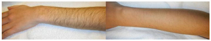 Laser Hair Removal Dallas