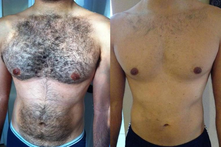 Laser Hair Removal North Dallas